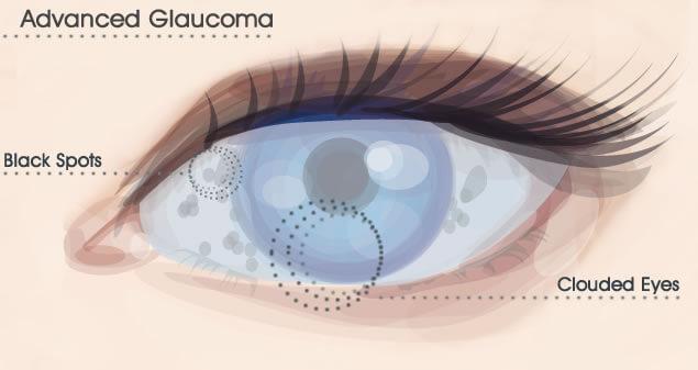 Glaucoma ridurre il rischio con l'attività fisica